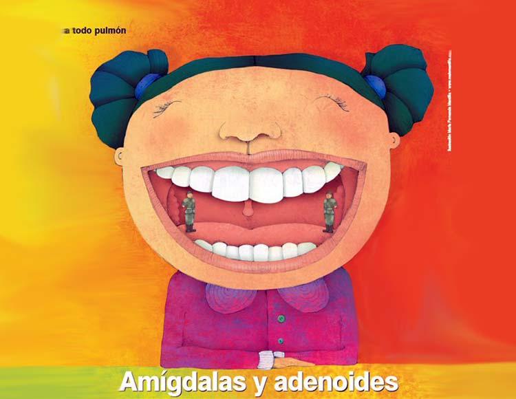 Información sobre Las amígdalas y las adenoides
