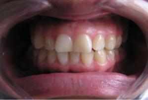 Blanqueamiento Dental Dra Olga Lucia Rodriguez