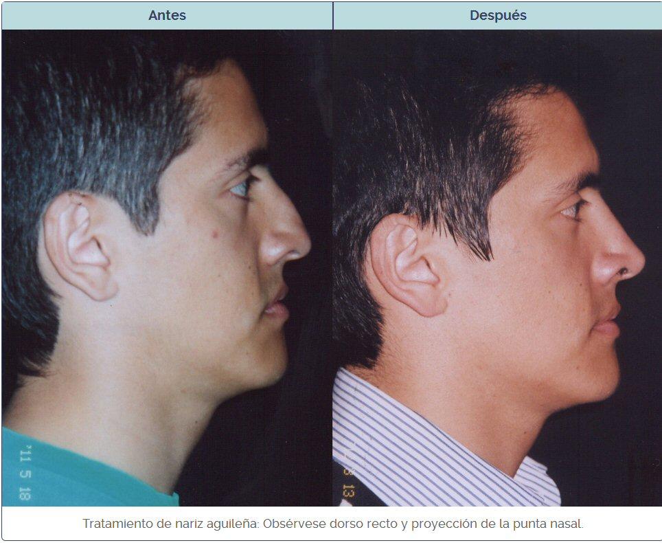 rinoplastia de nariz aguileña