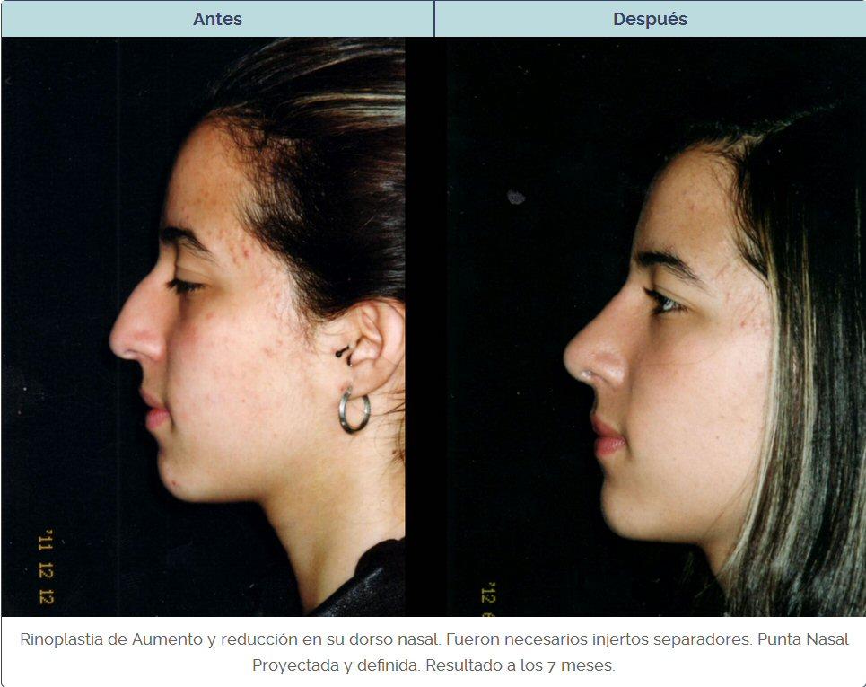 Rinoplastia de mujer antes y después en el dorso usando injertos separadores