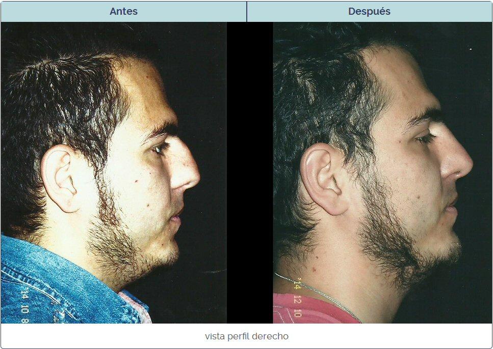operacion de nariz en sujeto con dorso nasal alto