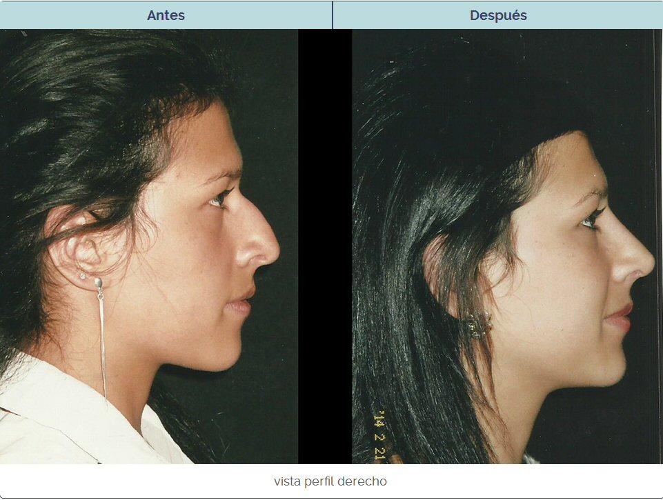 Perfil derecho de una rinoplastia en la que se corrigió una nariz aguileña que molestaba a la paciente.