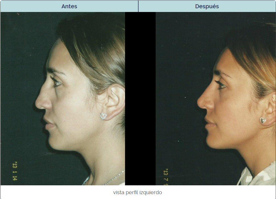 cirugia plastica de nariz en mujer en Bogotá con el antes y el despues