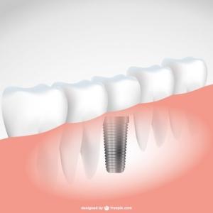 Se puede ahorrar en los implantes dentales?