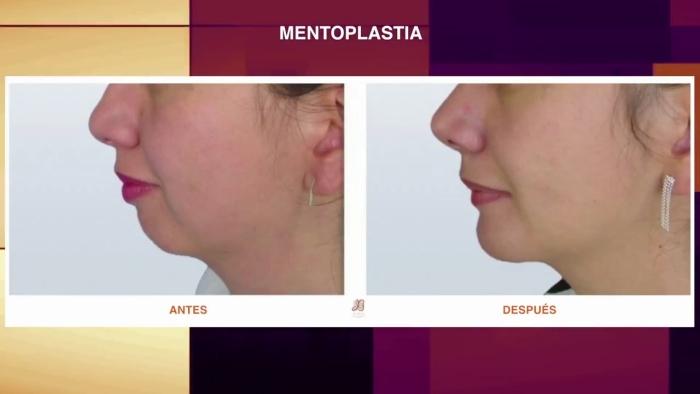 mujer operada de mentoplastia y rinoplastia antes y despues
